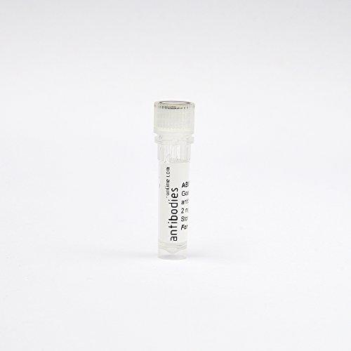 anti-Lorazepam antibody