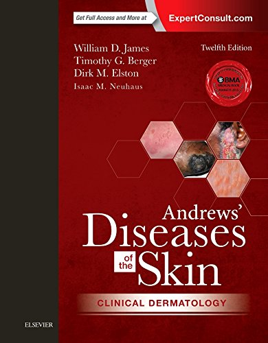 Andrews' Diseases of the Skin: Clinical Dermatology, 12e