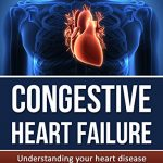 Congestive Heart Failure: Understanding your heart disease – Simple and Compact