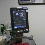Blood Pressure Definition