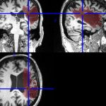 MRI brain scans better ID people likely to develop Alzheimer's