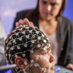Major Depression Treated with Transcranial Alternating Current Brain Stimulation