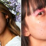 Skin-Care Brand Blume's Celebrate Skin Campaign Features Models With Acne — Photos – Allure Magazine