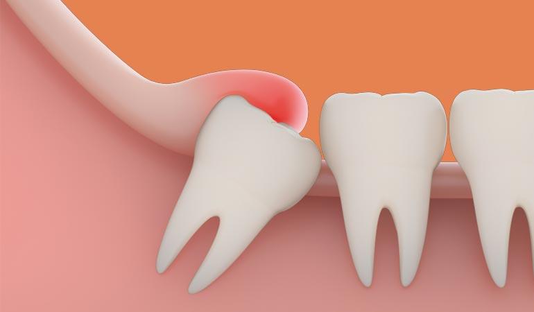 does it hurt when wisdom teeth come in